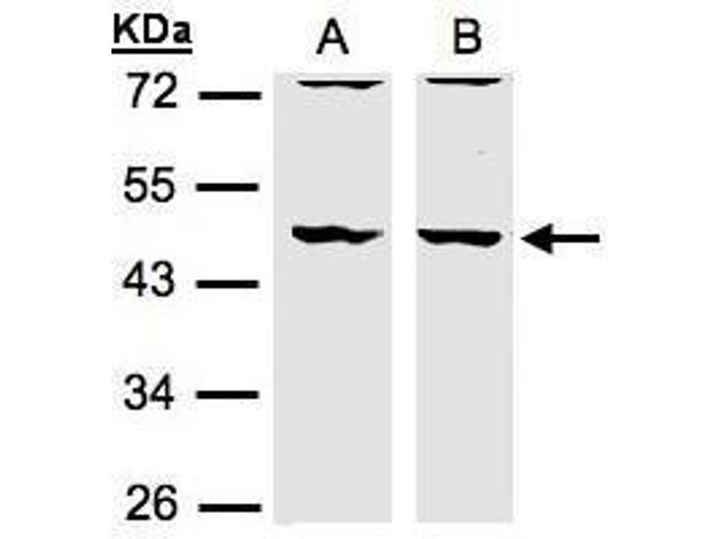 Western Blotting (WB) image for anti-DBNL antibody (Drebrin-Like) (N-Term) (ABIN2856301)