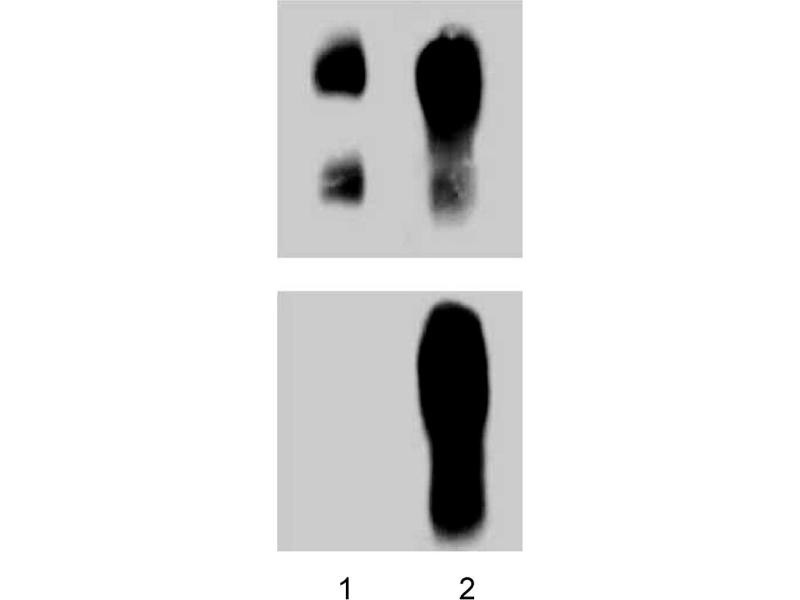 Western Blotting (WB) image for anti-Catenin (Cadherin-Associated Protein), delta 1 (CTNND1) (pTyr228) 抗体 (ABIN968864)