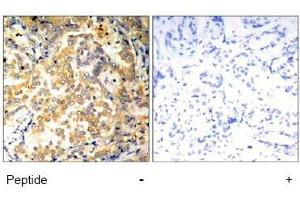 Image no. 1 for anti-Nuclear Factor of kappa Light Polypeptide Gene Enhancer in B-Cells 2 (NFKB2) (Ser871) antibody (ABIN197572)