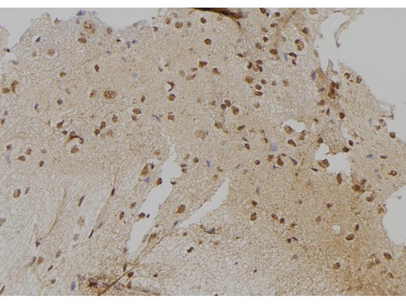 Image no. 3 for anti-LATS, Large Tumor Suppressor, Homolog 1 (Drosophila) (LATS1) (pTyr283) antibody (ABIN6269759)