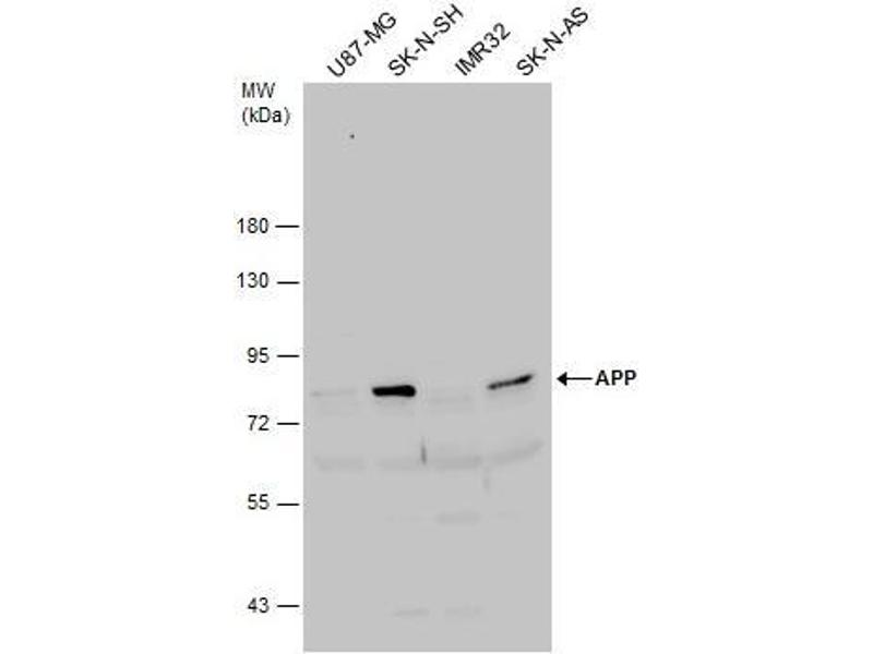 Western Blotting (WB) image for anti-Amyloid beta (A4) Precursor Protein (APP) (C-Term) antibody (ABIN2855011)