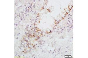 Immunohistochemistry (Paraffin-embedded Sections) (IHC (p)) image for anti-Fas Ligand (TNF Superfamily, Member 6) (FASL) (AA 170-220) antibody (ABIN726410)