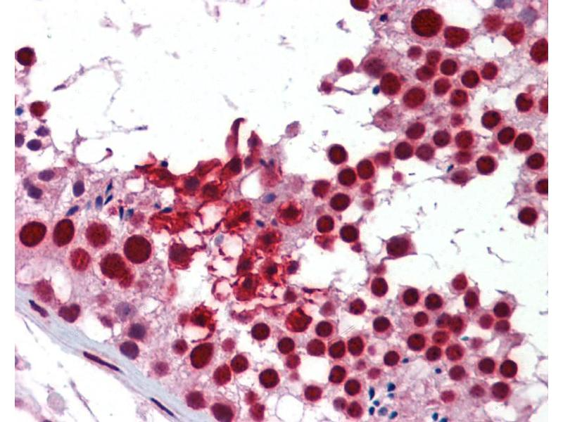 Immunohistochemistry (IHC) image for anti-KH Domain Containing, RNA Binding, Signal Transduction Associated 1 (KHDRBS1) (Middle Region) antibody (ABIN2779000)