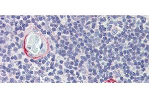Image no. 3 for anti-CPX Chromosome Region, Candidate 1 (CPXCR1) (Middle Region) antibody (ABIN2778421)