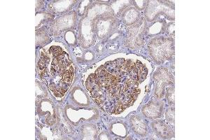 Immunohistochemistry (IHC) image for anti-Complement Component Receptor 1 (CD35) (CR1) antibody (ABIN4292461)