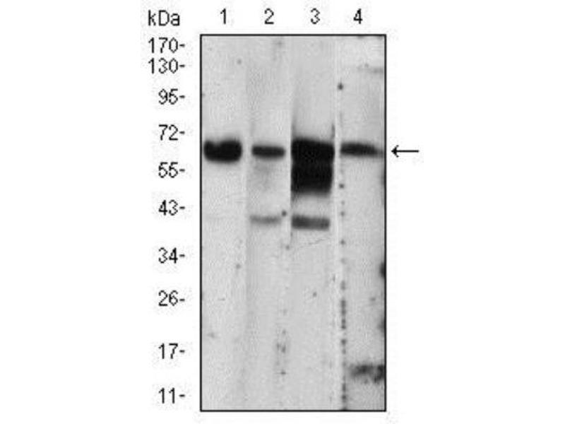 Western Blotting (WB) image for anti-EIF2AK2 抗体 (Eukaryotic Translation Initiation Factor 2-alpha Kinase 2) (ABIN4345930)