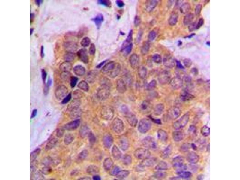 Immunohistochemistry (IHC) image for anti-Cortactin antibody (CTTN) (pTyr421) (ABIN2705928)