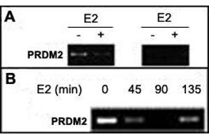 Image no. 1 for anti-PR Domain Containing 2, with ZNF Domain (PRDM2) antibody (ABIN533010)