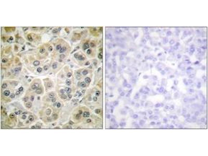 Immunohistochemistry (IHC) image for anti-Vimentin antibody (VIM) (ABIN1533459)
