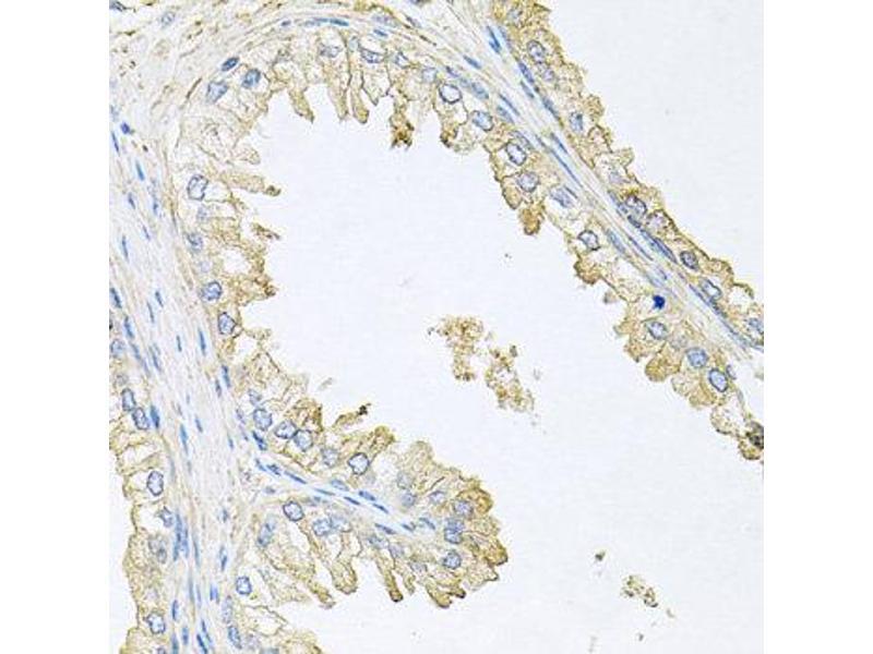 Immunohistochemistry (IHC) image for anti-Protein Phosphatase 3, Regulatory Subunit B, alpha (PPP3R1) antibody (ABIN1874237)