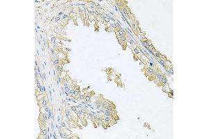 Immunohistochemistry (IHC) image for anti-PPP3R1 Antikörper (Protein Phosphatase 3, Regulatory Subunit B, alpha) (ABIN1874237)