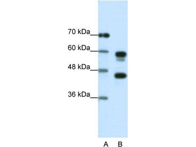 Western Blotting (WB) image for anti-Proteasome (Prosome, Macropain) 26S Subunit, ATPase, 5 (PSMC5) (C-Term) antibody (ABIN2780449)