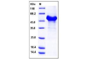 Image no. 1 for Reticulon 4 (RTN4) (AA 1-185) (Active) protein (GST tag) (ABIN2005381)