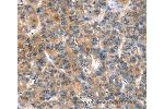 Immunohistochemistry (IHC) image for anti-Calcium Channel, Voltage-Dependent, P/Q Type, alpha 1A Subunit (CACNA1A) antibody (ABIN2434370)
