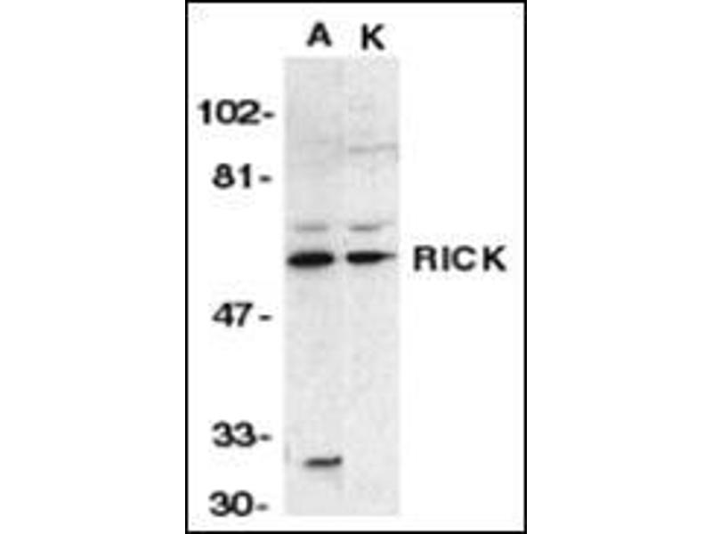 Western Blotting (WB) image for anti-RIPK2 antibody (Receptor-Interacting Serine-threonine Kinase 2) (N-Term) (ABIN500599)