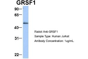 Image no. 9 for anti-G-Rich RNA Sequence Binding Factor 1 (GRSF1) (Middle Region) antibody (ABIN2778788)