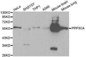 Image no. 3 for anti-Protein Phosphatase 3, Catalytic Subunit, alpha Isoform (PPP3CA) antibody (ABIN3021336)