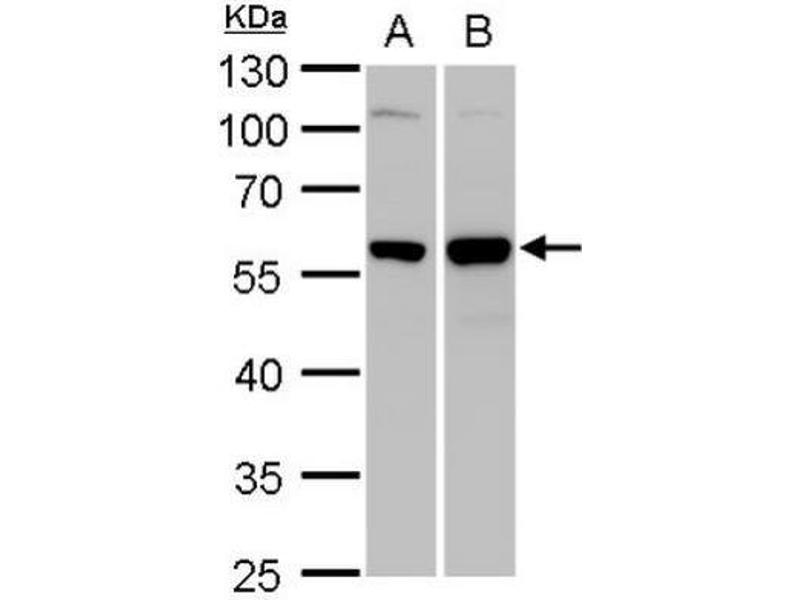 Western Blotting (WB) image for anti-Vimentin antibody (VIM) (ABIN441334)