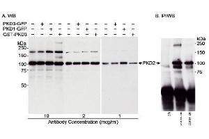 Western Blotting (WB) image for anti-Protein Kinase D2 (PKD2) antibody (ABIN152061)