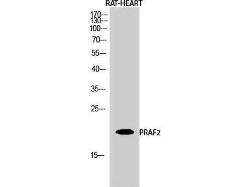 Western Blotting (WB) image for anti-PRA1 Domain Family, Member 2 (PRAF2) (C-Term) antibody (ABIN3186548)