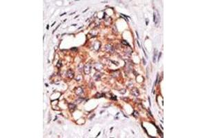 image for anti-Growth Differentiation Factor 3 (GDF3) (N-Term) antibody (ABIN357459)