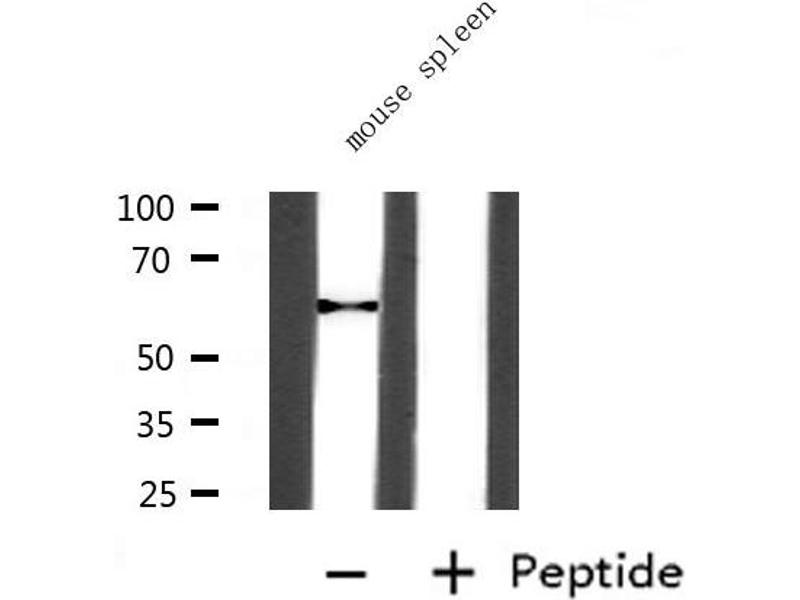 Western Blotting (WB) image for anti-Angiopoietin 2 (ANGPT2) antibody (ABIN6259928)