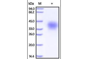 Image no. 1 for Tumor Necrosis Factor Receptor Superfamily, Member 10d, Decoy with Truncated Death Domain (TNFRSF10D) (AA 56-211) protein (His tag) (ABIN2181845)