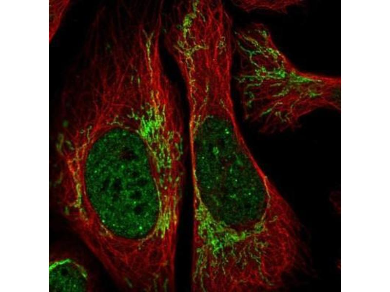 Immunofluorescence (IF) image for anti-Regulator of Calcineurin 2 (RCAN2) antibody (ABIN4349730)