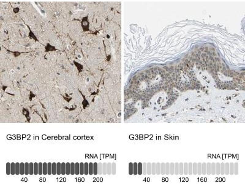 Immunohistochemistry (Paraffin-embedded Sections) (IHC (p)) image for anti-GTPase Activating Protein (SH3 Domain) Binding Protein 2 (G3BP2) antibody (ABIN4313044)