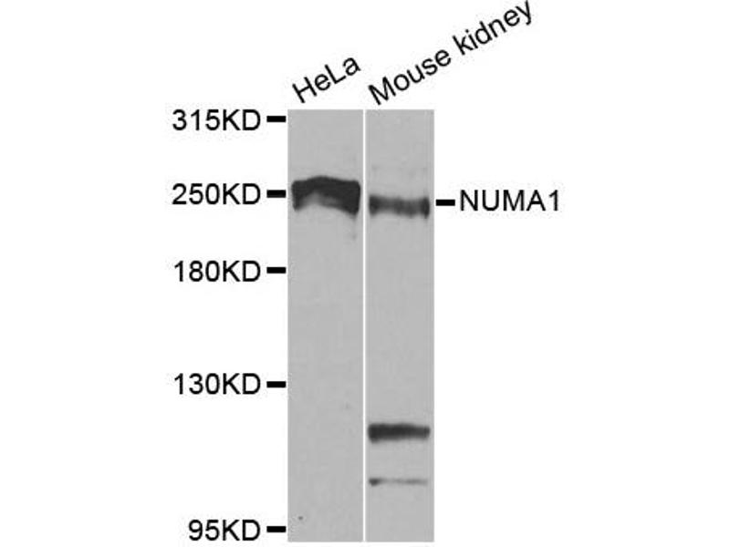 Image no. 1 for anti-Nuclear Mitotic Apparatus Protein 1 (NUMA1) antibody (ABIN6566605)