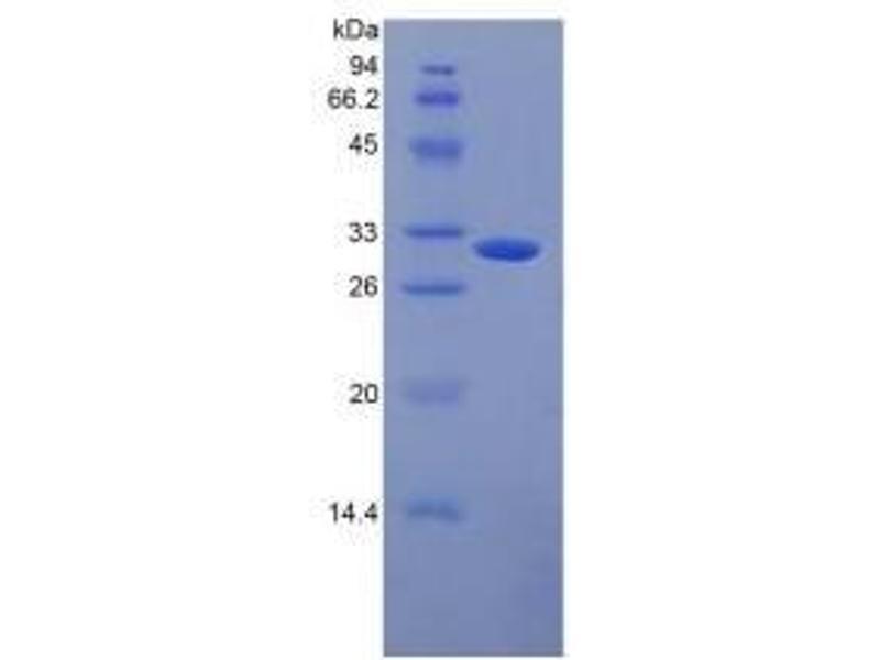 Mannose-Binding Lectin (Protein C) 2, Soluble (MBL2) ELISA Kit (2)