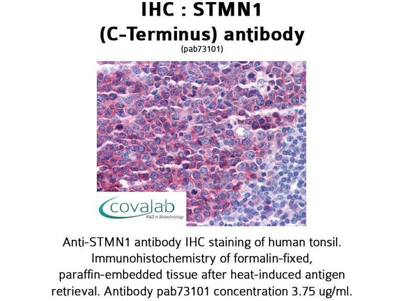 image for anti-Stathmin 1 antibody (STMN1) (C-Term) (ABIN1739730)