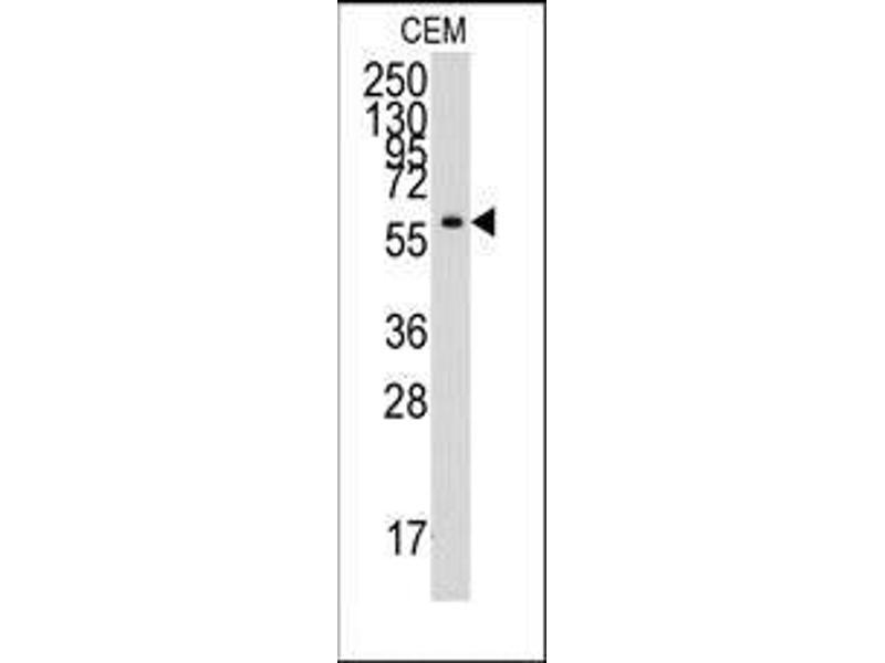 Western Blotting (WB) image for anti-Tyrosyl-tRNA Synthetase (Yars) (C-Term) antibody (ABIN359750)