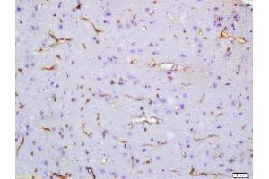 Image no. 1 for anti-Synaptic Vesicle Glycoprotein 2A (SV2A) antibody (ABIN739815)