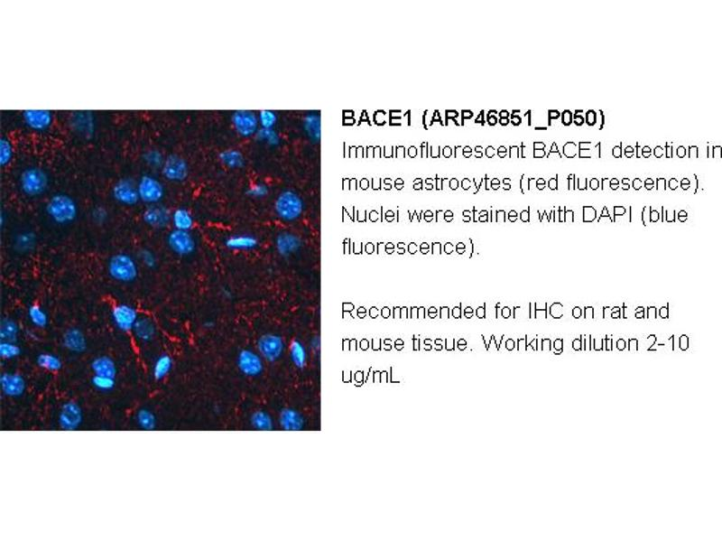 image for anti-beta-Site APP-Cleaving Enzyme 1 (BACE) (N-Term) antibody (ABIN2782766)