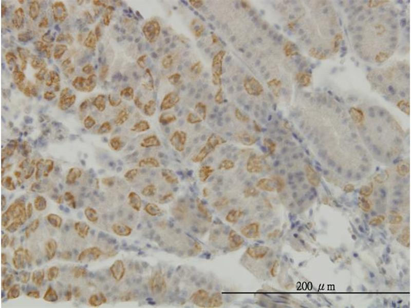 Immunostaining (ISt) image for anti-AATK Antikörper (Apoptosis-Associated tyrosine Kinase) (AA 161-260) (ABIN564158)