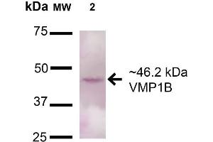 Image no. 2 for anti-Vacuole Membrane Protein 1 (VMP1) (AA 391-402) antibody (HRP) (ABIN5066456)