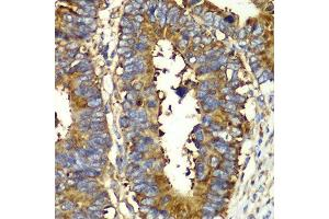 Image no. 1 for anti-Glutaminyl-tRNA Synthetase (QARS) antibody (ABIN6146529)