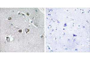 Immunohistochemistry (IHC) image for anti-COL11A2 antibody (Collagen, Type XI, alpha 2) (ABIN2163857)