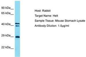 Image no. 1 for anti-Helt BHLH Transcription Factor (HELT) (AA 138-187) antibody (ABIN6750287)