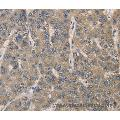Immunohistochemistry of Human gastric cancer using IRAK4 Polyclonal Antibody at dilution of 1:40