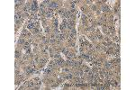 Immunohistochemistry (IHC) image for anti-IRAK4 antibody (Interleukin-1 Receptor-Associated Kinase 4) (ABIN2421751)