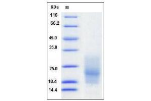 Image no. 1 for CD63 (CD63) (2nd Extracellular Domain), (AA 103-203), (Extracellular Domain) protein (His tag) (ABIN2004169)