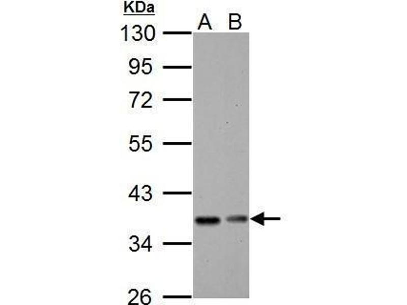Western Blotting (WB) image for anti-Nuclear Factor of kappa Light Polypeptide Gene Enhancer in B-Cells Inhibitor, alpha (NFKBIA) (Center) antibody (ABIN2856763)