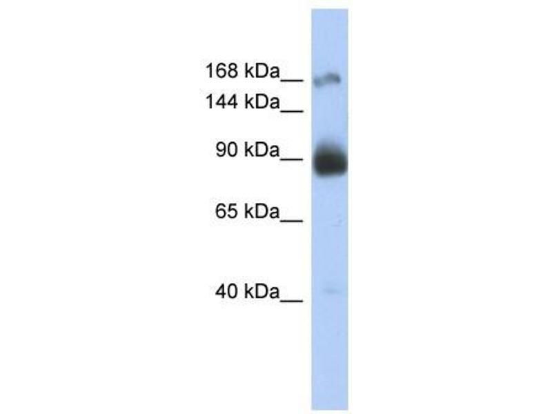 Western Blotting (WB) image for anti-Insulin Receptor (INSR) (Middle Region) antibody (ABIN926933)