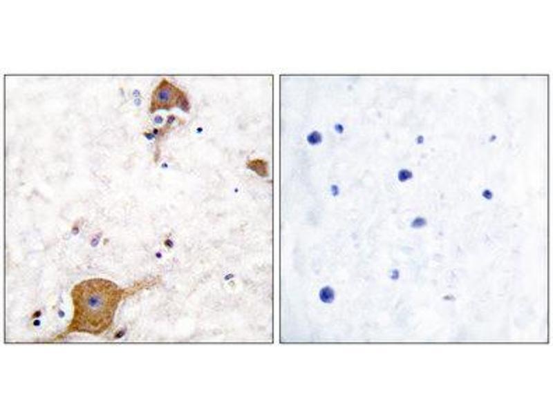 Immunohistochemistry (IHC) image for anti-Neuregulin 1 (NRG1) (Isoform 10), (N-Term) antibody (ABIN1848606)
