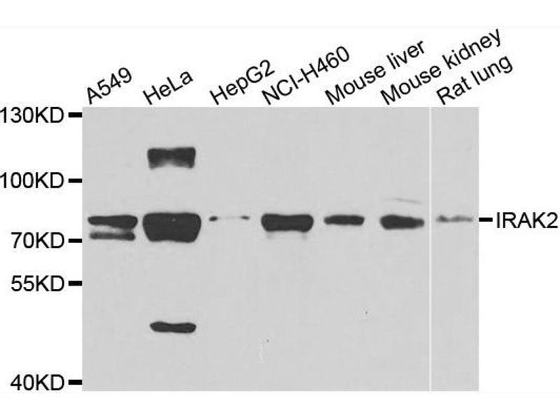 Western Blotting (WB) image for anti-Interleukin-1 Receptor-Associated Kinase 2 (IRAK2) antibody (ABIN2563460)