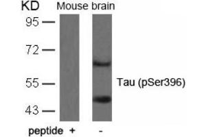 Image no. 1 for anti-Microtubule-Associated Protein tau (MAPT) (pSer396) antibody (ABIN196790)