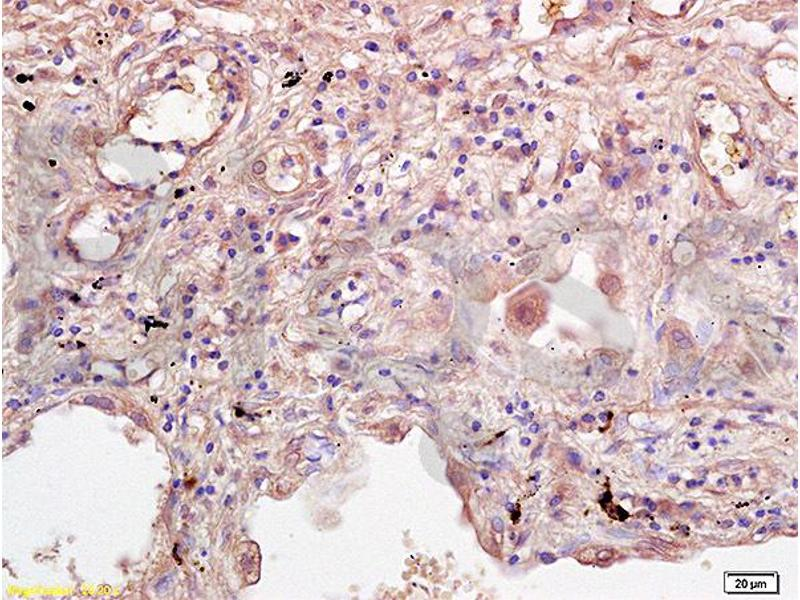 Immunohistochemistry (Paraffin-embedded Sections) (IHC (p)) image for anti-IL2RG antibody (Interleukin 2 Receptor, gamma) (AA 135-185) (ABIN2176981)