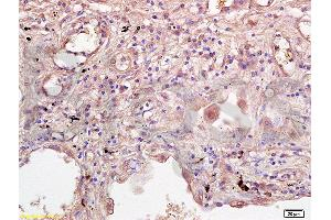 Immunohistochemistry (Paraffin-embedded Sections) (IHC (p)) image for anti-Interleukin 2 Receptor, gamma (IL2RG) (AA 135-185) antibody (ABIN2176981)